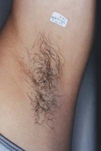 szőrtelenítés - tartós szőrtelenítés - végleges szőrtelenítés